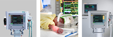 Abbildung SPO2C-adaptive Beatmung für Früh- und Neugeborene